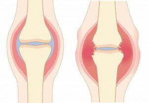 膝の痛み 都島